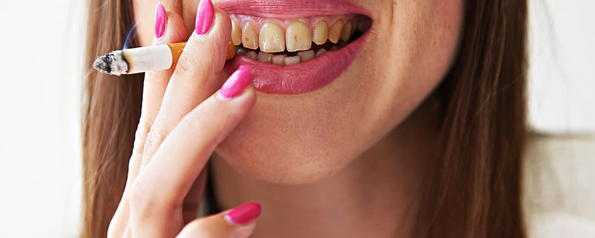 yellow teeth from smoking
